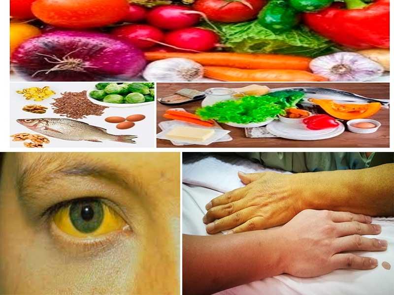 Dieta para pacientes con sindrome de gilbert