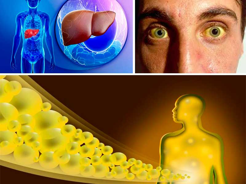 causas de tener alta la bilirrubina